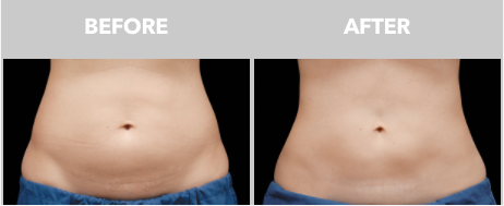 Before & After CoolSculpting-2