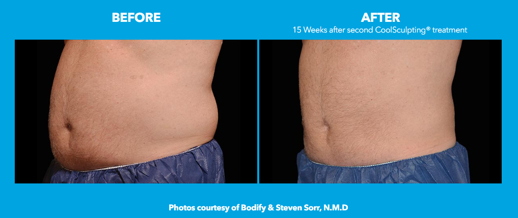 How Much Does CoolSculpting® Cost?